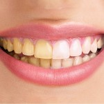 How To Whiten Teeth In Camera Raw Lensvid Comlensvid Com