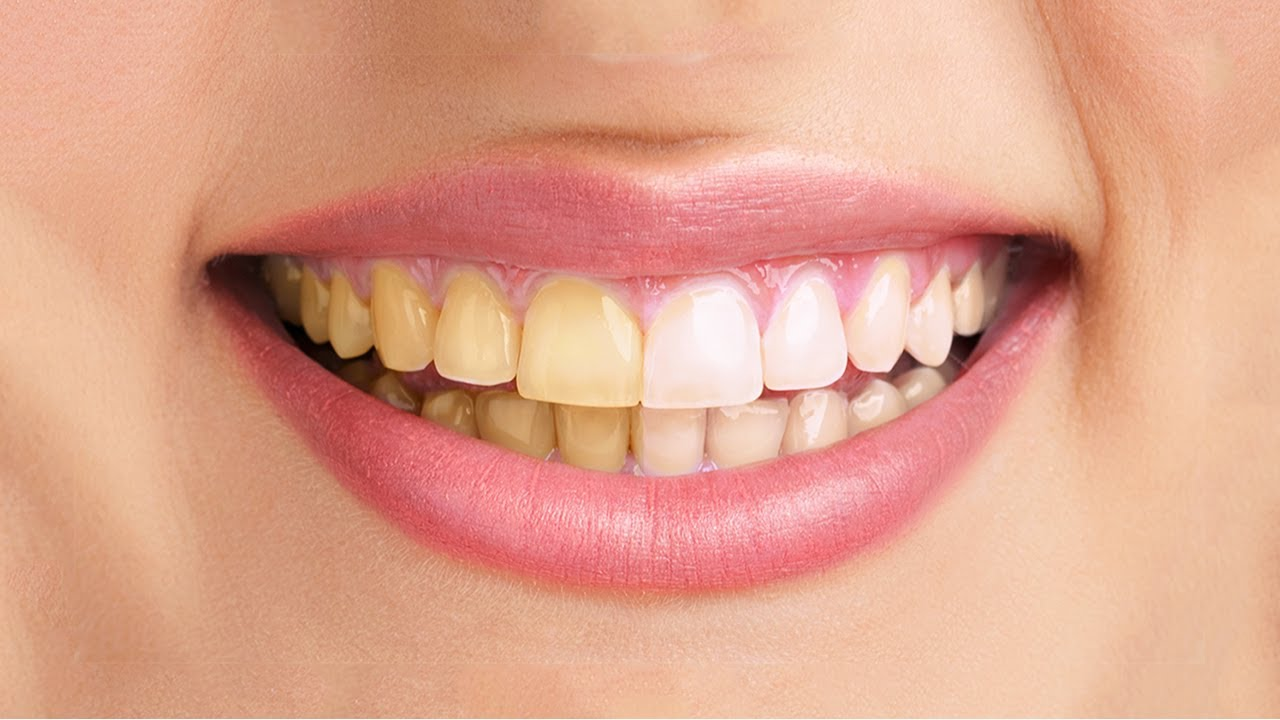"Struggling with Yellow Teeth"" How to Whiten Teeth at Home"