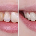 The Right Way to Whiten Teeth in Photoshop