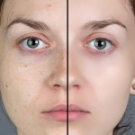 How to Quickly Smooth Skin and Remove Blemishes & Scars Using Photoshop