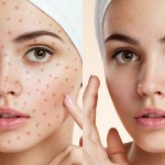 5 Ways to Clean Skin Blemishes and Heal Skin in Photoshop