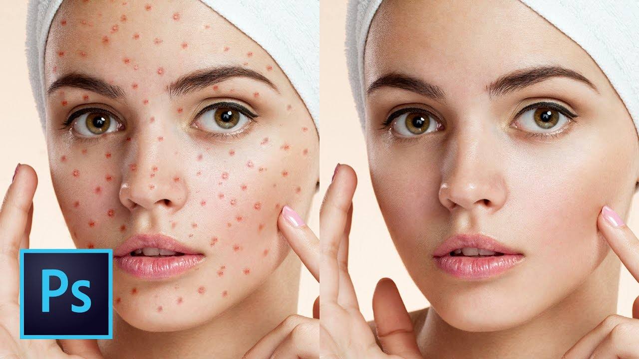 5 ways to clean skin blemishes and heal skin in photoshop 5 ways to clean skin blemishes and heal skin in photoshop lensvidlensvid baditri Choice Image